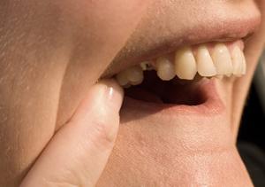むし歯(う蝕)による痛み