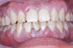 歯周病・歯槽膿漏(歯ぐきの痛み)