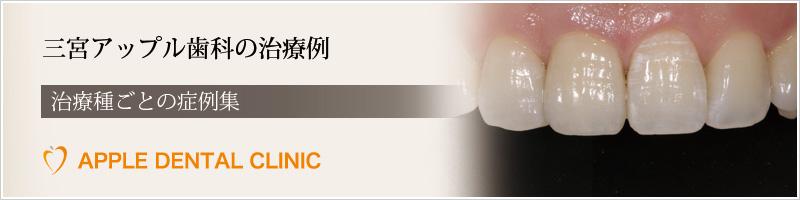 三宮アップル歯科の症例集
