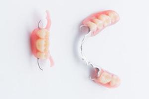 部分床義歯