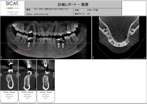 三宮アップル歯科のインプラントの特徴