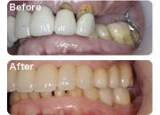 奥歯からしっかり補強