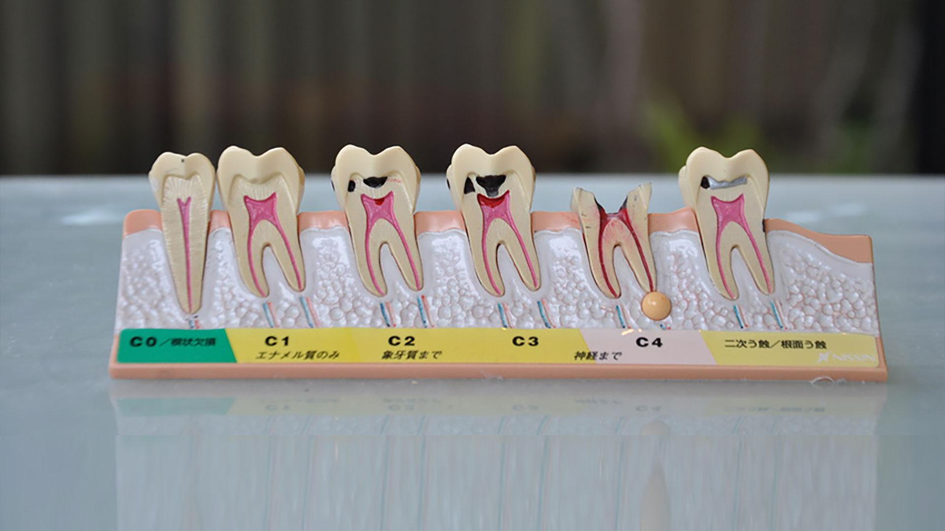 神経 歯 を 抜く の 本当に歯の神経は抜く必要があるの?神経を抜くほどの虫歯と治療法