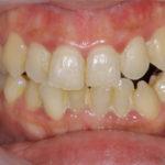 歯周病治療の症例集