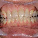 咬み合わせの力から周りの歯を守る予防的インプラント